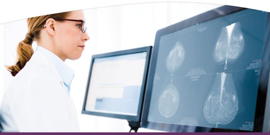 Sectra en RAM-Infotechnology gaan samen ICT-diensten leveren voor Nationale Bevolkingsonderzoek Borstkanker